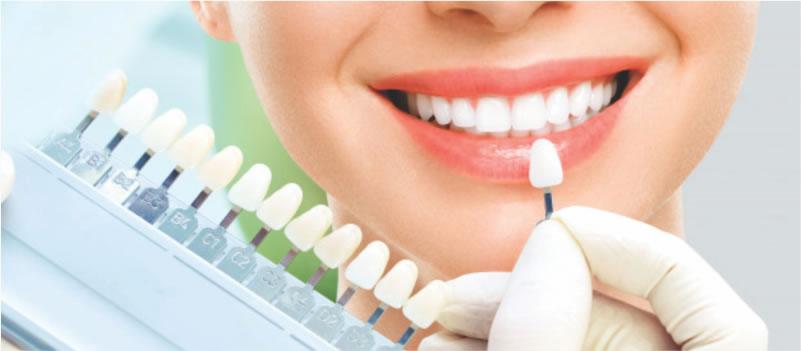 Blanquemaiento Dental