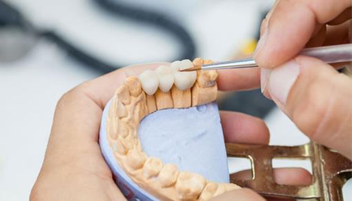 laboratorio-dental-malo